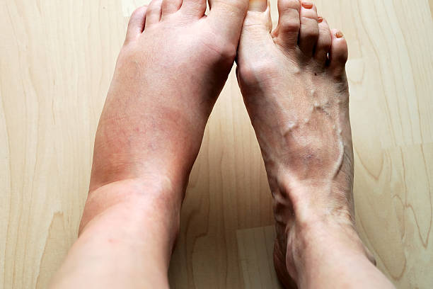 swollen leg sting of an insect. swollen leg. human leg stock pictures, royalty-free photos & images