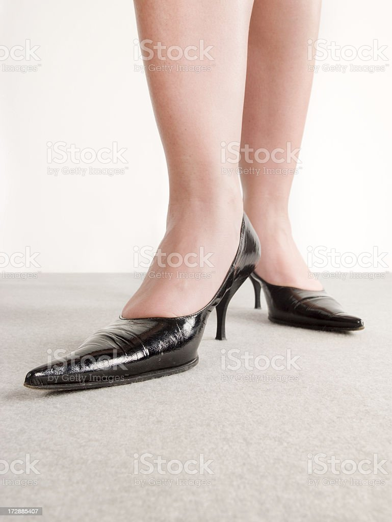 swollen legs stock photo