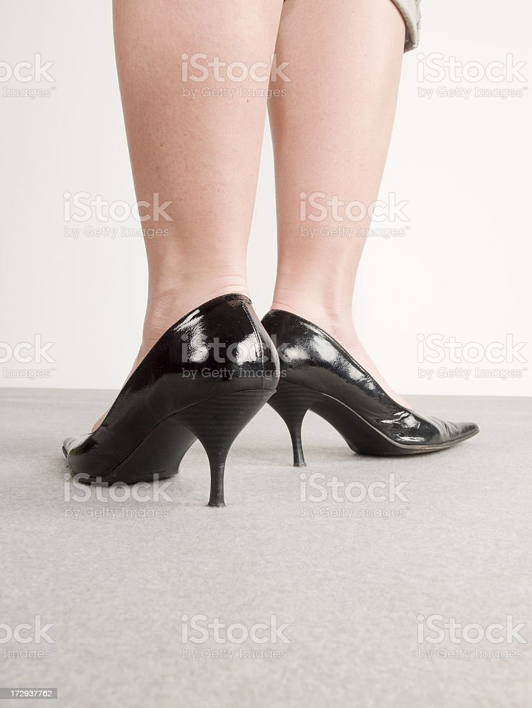 swollen legs royalty-free stock photo
