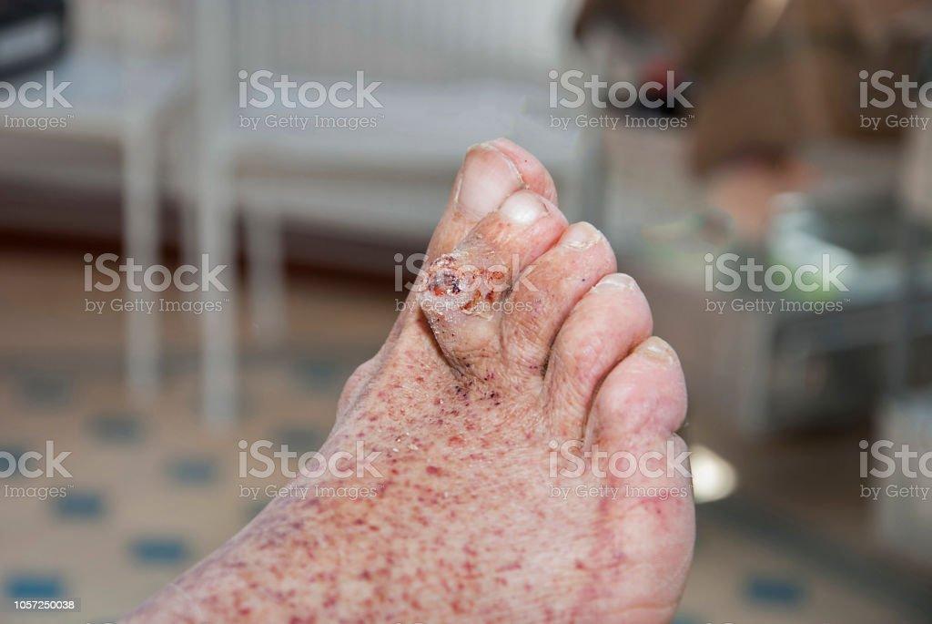 Syndrom des diabetischen Fußes – Foto