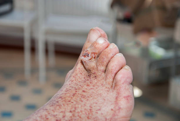 Syndrome of diabetic foot stock photo
