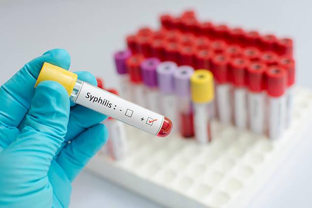 Syphilis blood sample Blood sample with syphilis (Treponema Pallidum) positive treponema pallidum stock pictures, royalty-free photos & images