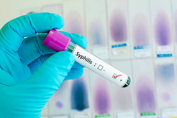 Syphilis positive Blood sample with syphilis positive treponema pallidum stock pictures, royalty-free photos & images