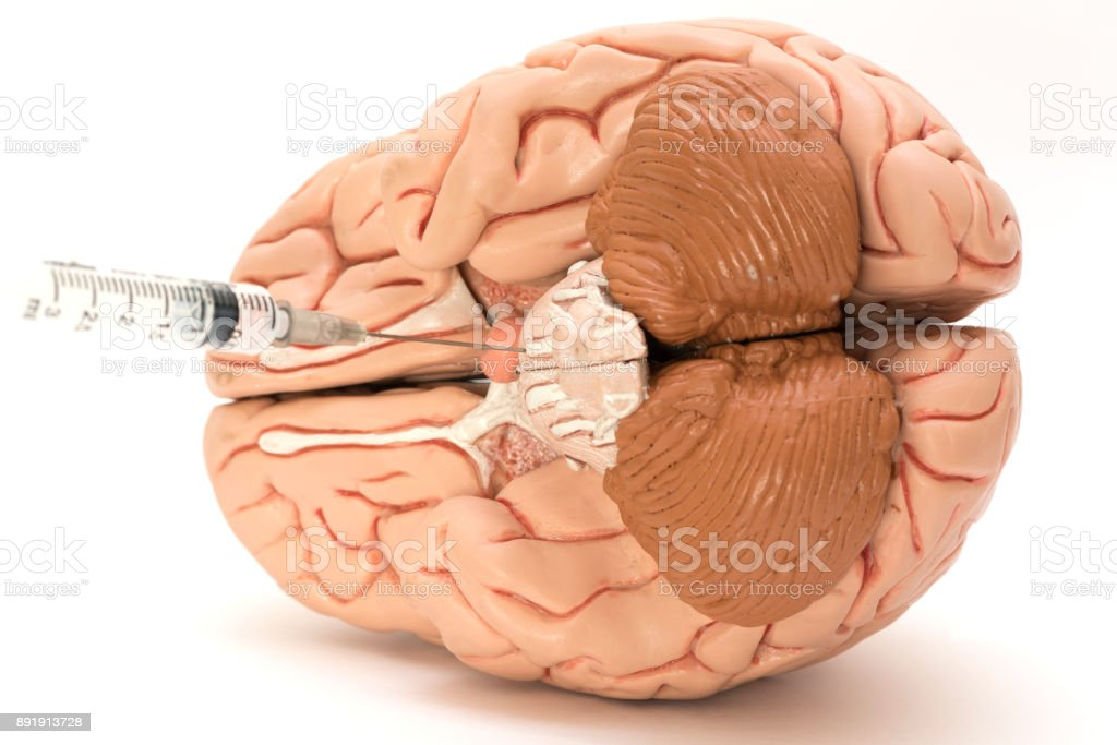 Syringe Needle And Bottom Of Brain Model Stock Photo & More Pictures ...