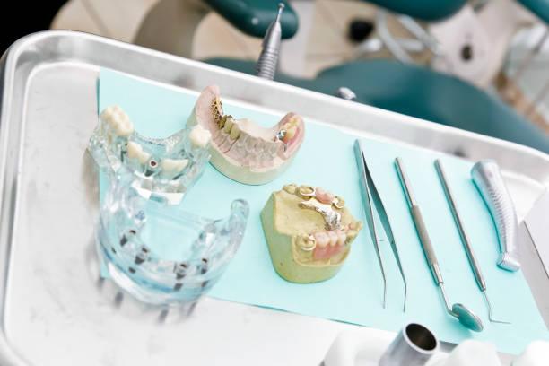 tabelle ein zahnarzt mit prothesen und hilfsmittel - inlay zahn stock-fotos und bilder