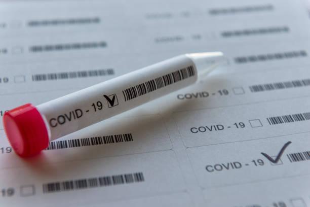 Tags bereit für COVID-19 Prüfungen - Tube für Swab-Test – Foto