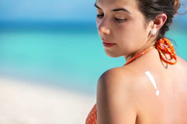 Tanned young woman in bikini showing exclamation point on shoulder due to sunburn,  tan line and reddish skin stock photo