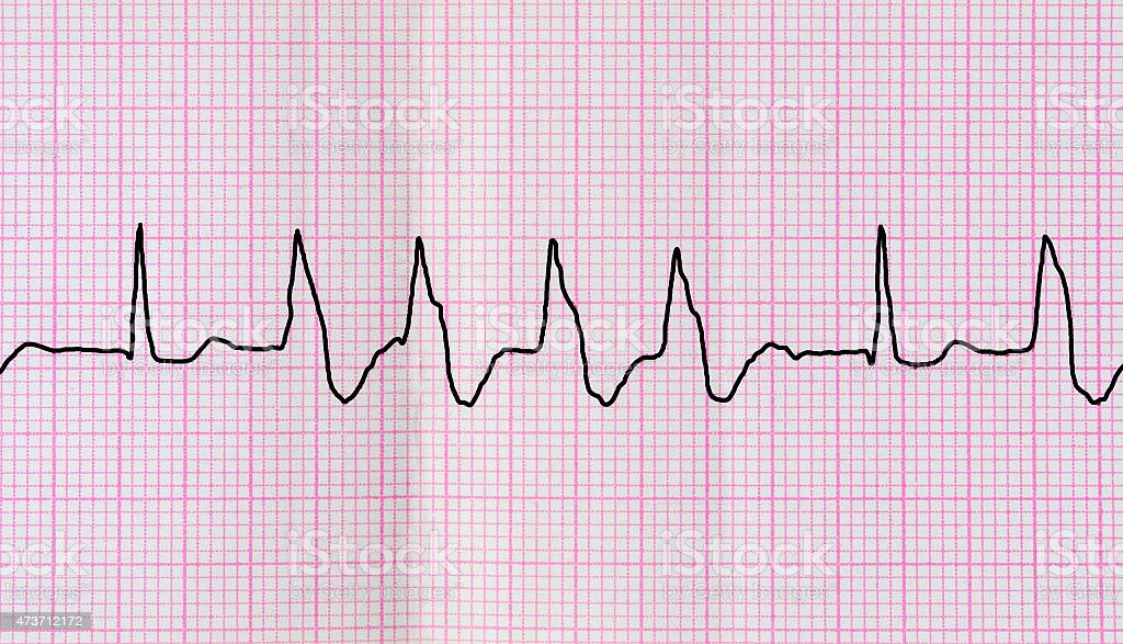 Tape ECG with group ventricular extrasystoles stock photo