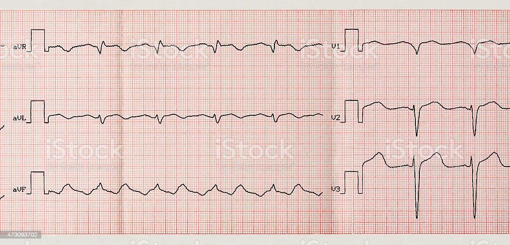 Tape ECG with paroxysm of atrial flutter stock photo