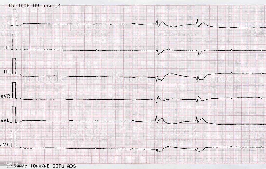 ECG tape ('dying heart') stock photo