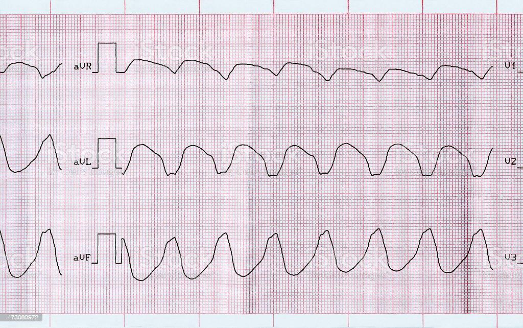ECG tape with paroxysmal ventricular tachycardia stock photo