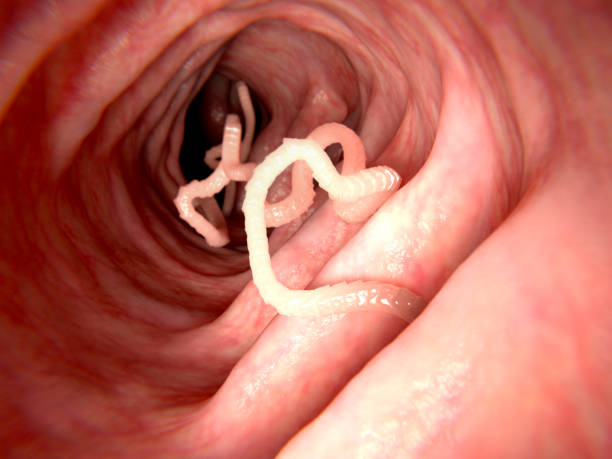 tapeworm in human intestine - human intestine stock photos and pictures