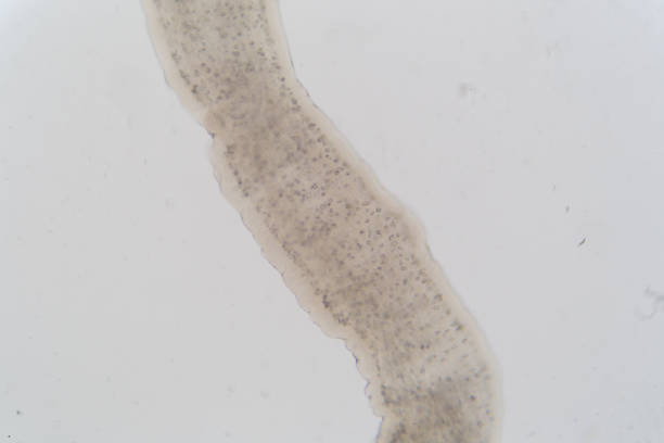 Tapeworm infection is the infestation of the digestive tract by a species of parasitic flatworm, called tapeworms under the microscope for education in Lab. Tapeworm infection is the infestation of the digestive tract by a species of parasitic flatworm, called tapeworms under the microscope for education in Lab. proglottid stock pictures, royalty-free photos & images