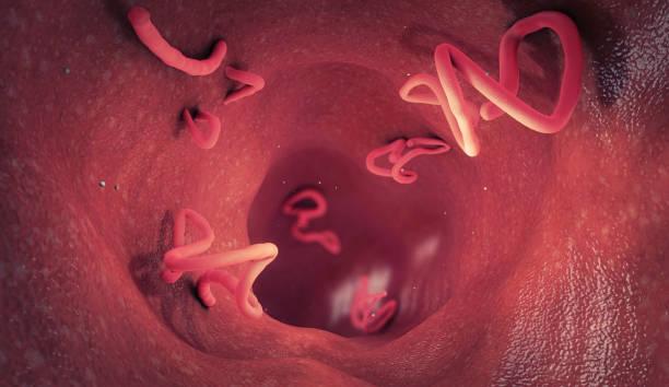 Tapeworm infestation in a human intestine - 3d illustration stock photo