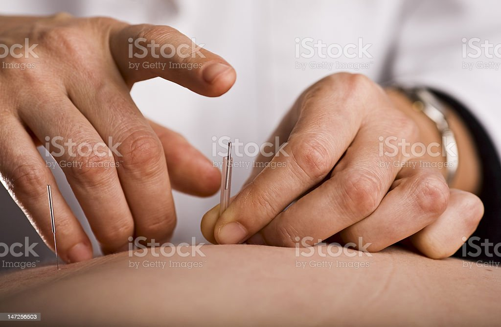 Tapping in acupuncture needle royalty-free stock photo