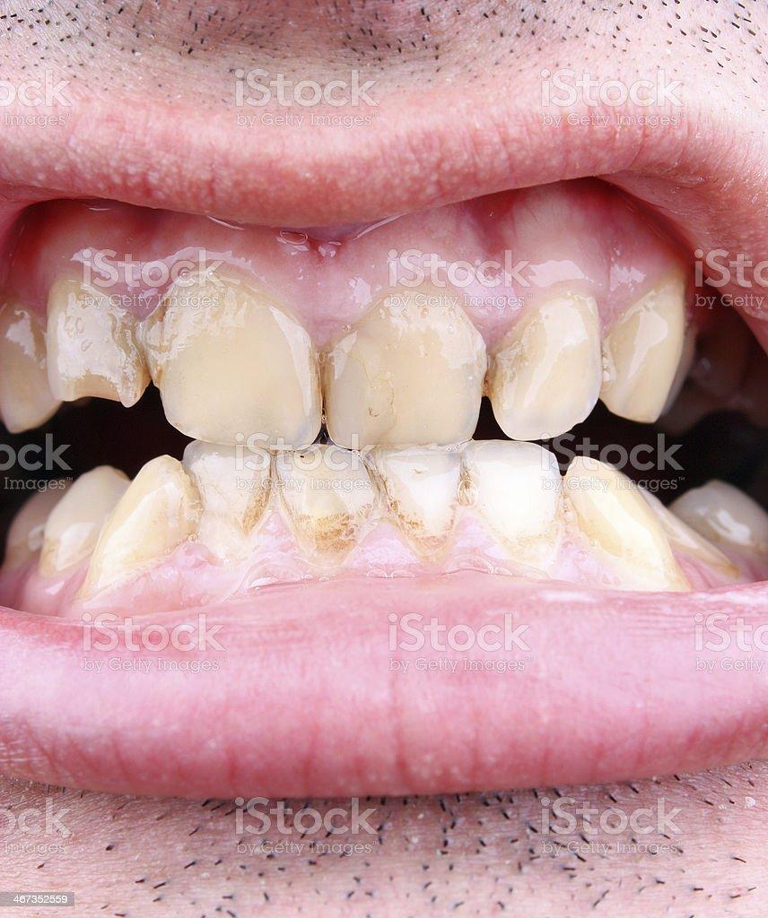 Tartar und Zahn Verfall - Lizenzfrei Das Böse Stock-Foto