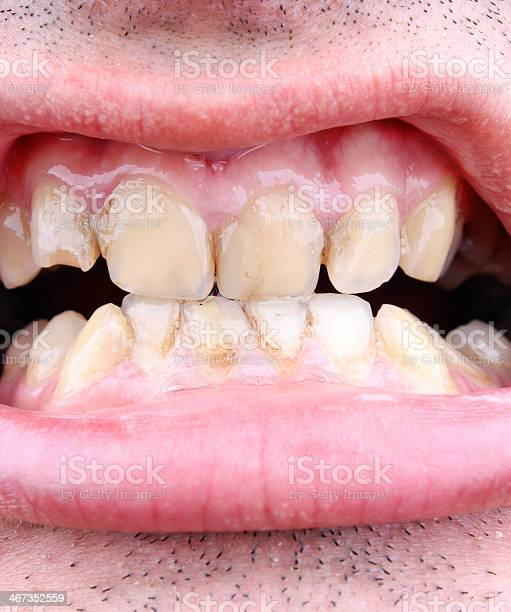 Tartar Und Zahn Verfall Stockfoto und mehr Bilder von Das Böse