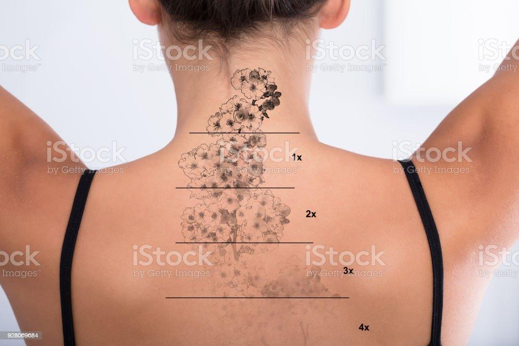 Tattooentfernung Auf Rücken Frau Stockfoto Und Mehr Bilder Von