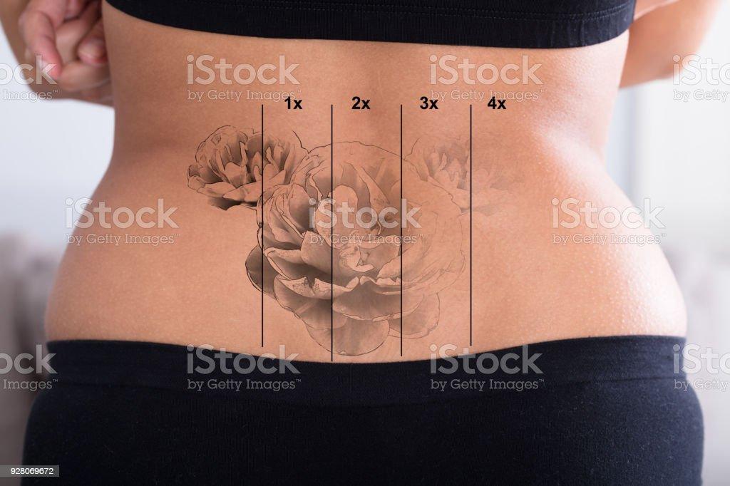 Foto De Remoção De Tatuagem Na Cintura Da Mulher E Mais