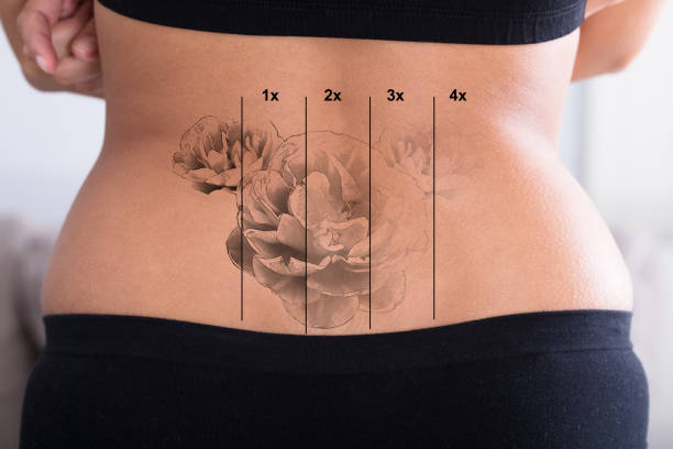 tattoo removal on woman's hip - tattoo removal stock pictures, royalty-free photos & images