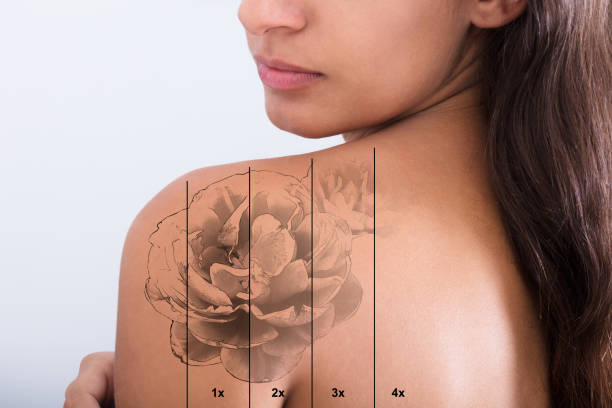 tattoo removal on woman's shoulder - tattoo removal stock pictures, royalty-free photos & images