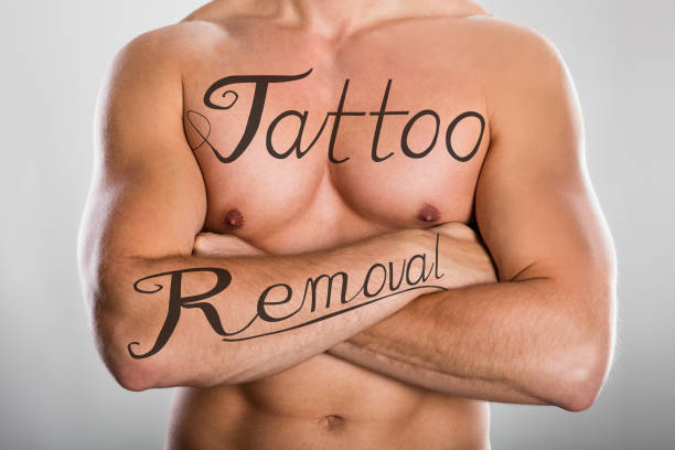 tattoo removal text on man's chest and on his arm - tattoo removal stock pictures, royalty-free photos & images