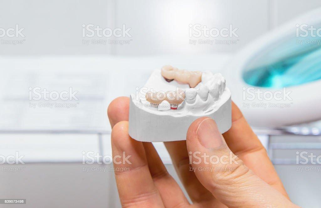 Plans de modèle technique dans un laboratoire prothetic dentaire - Photo