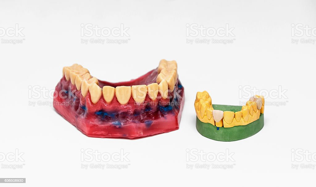 Technical shots of models on a dental  laboratory stock photo