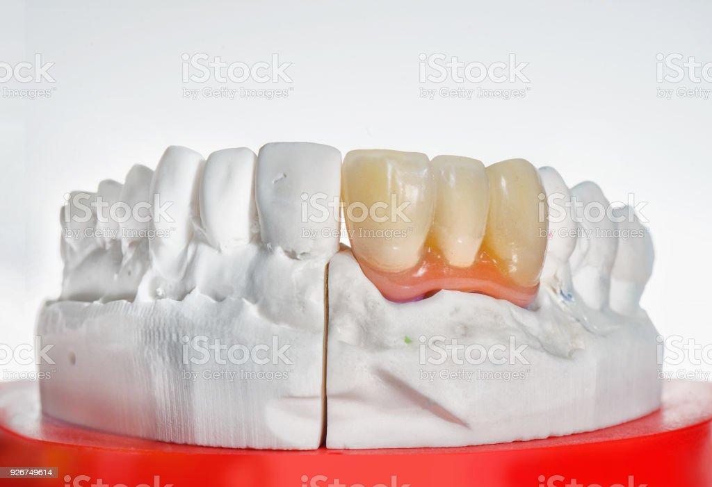 Plans techniques du modèle sur un laboratoire prothétiques dentaire et prothèse dentaire. - Photo