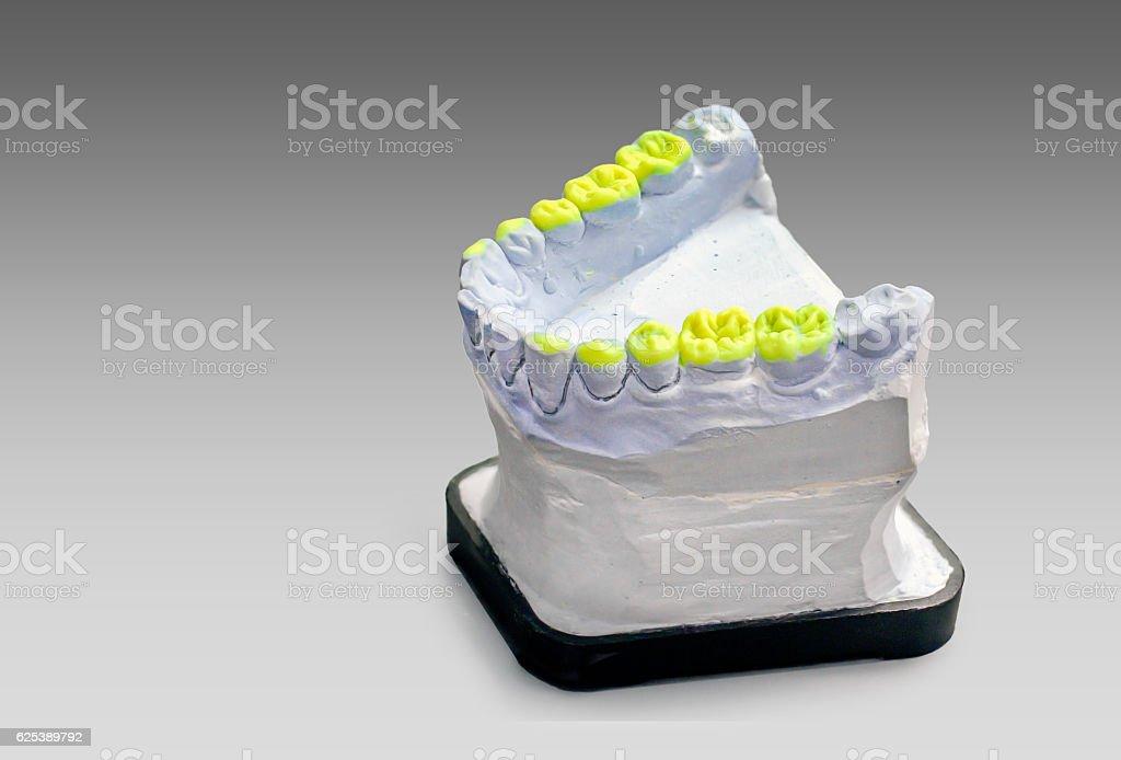 Technical shots on a dental prothetic laboratory stock photo