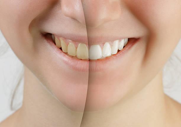 teen girl smile before and after teeth whitening - tanden bleken stockfoto's en -beelden