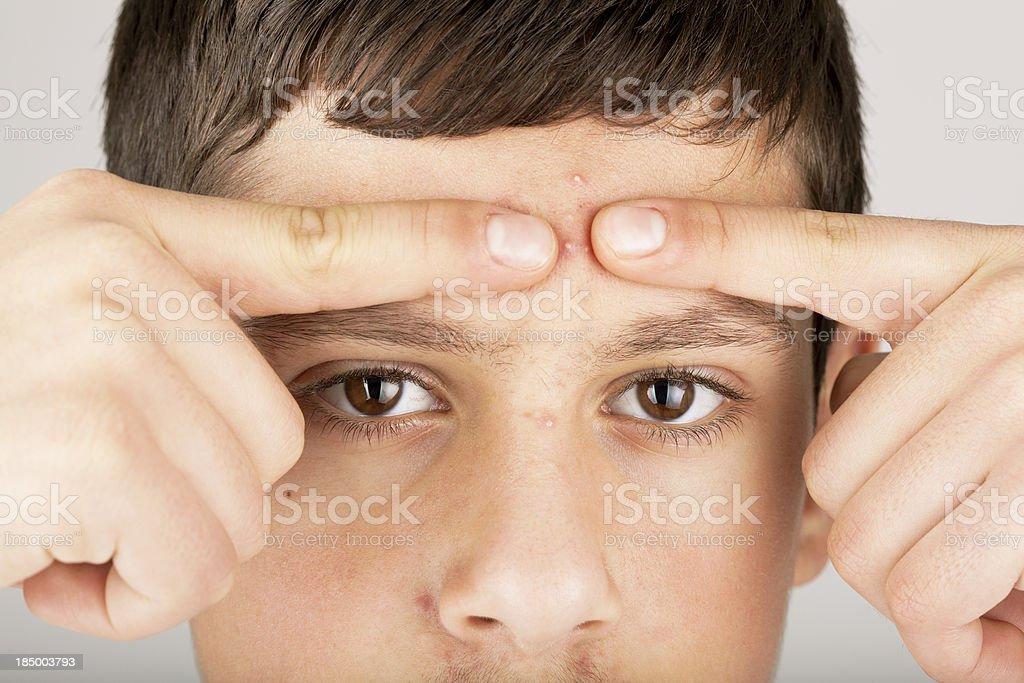 Teenage boy pinching whitehead zit royalty-free stock photo