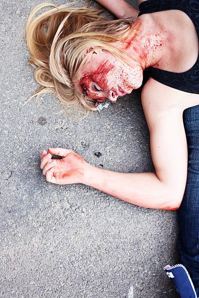 Teenage girl with head injury stock photo