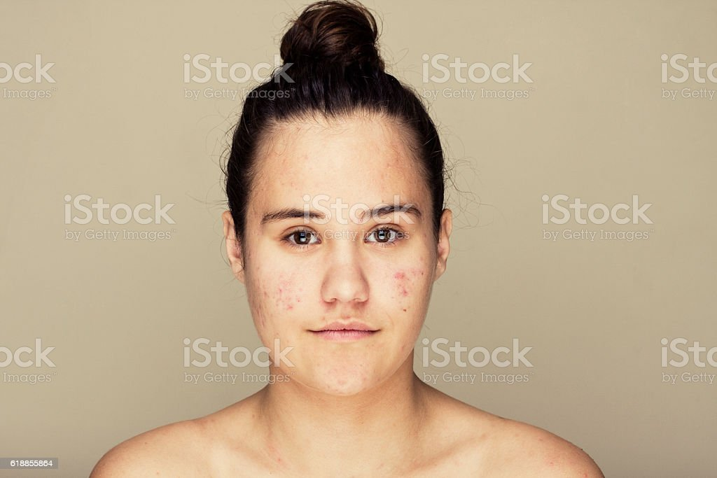 Teenage skin stock photo