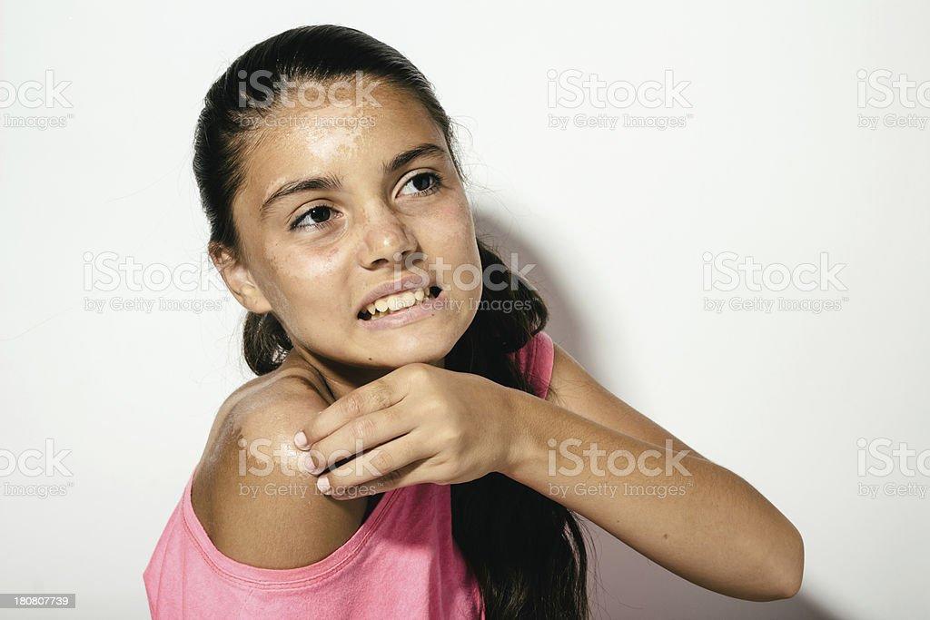 Teenager girl sunburn and skin peeling royalty-free stock photo