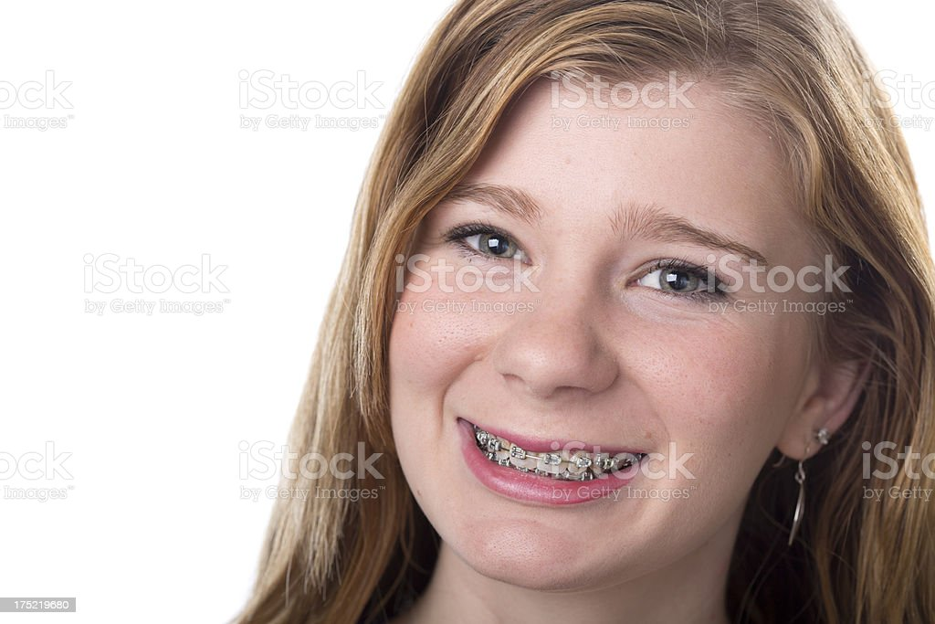 Teenager With Braces royalty-free stock photo
