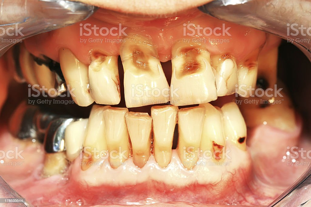 Teeth abrasion stock photo