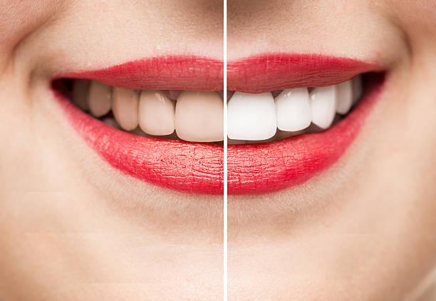 zähne vor und nach der zahnaufhellung - zahnweiss stock-fotos und bilder