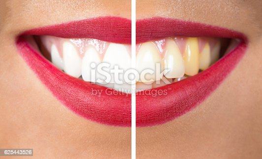 istock Teeth After and Before Whitening 625443526