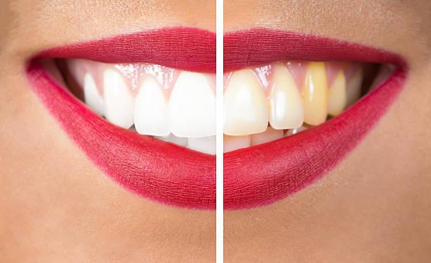 teeth after and before whitening - tanden bleken stockfoto's en -beelden