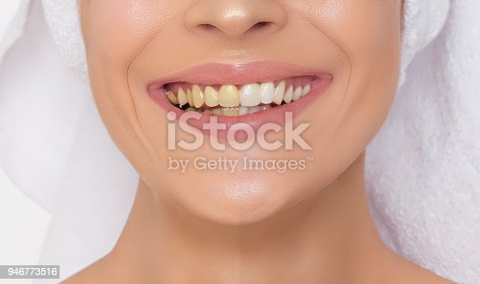 istock Teeth before and after cleansing 946773516