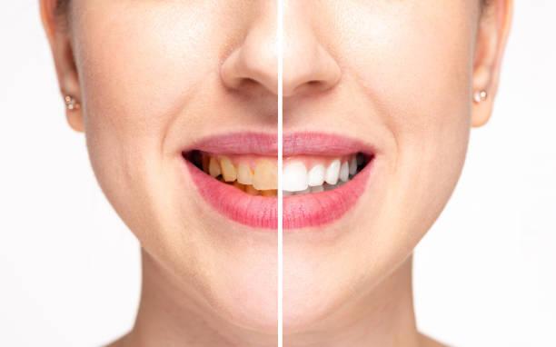 tanden voor en na de whitening - tanden bleken stockfoto's en -beelden