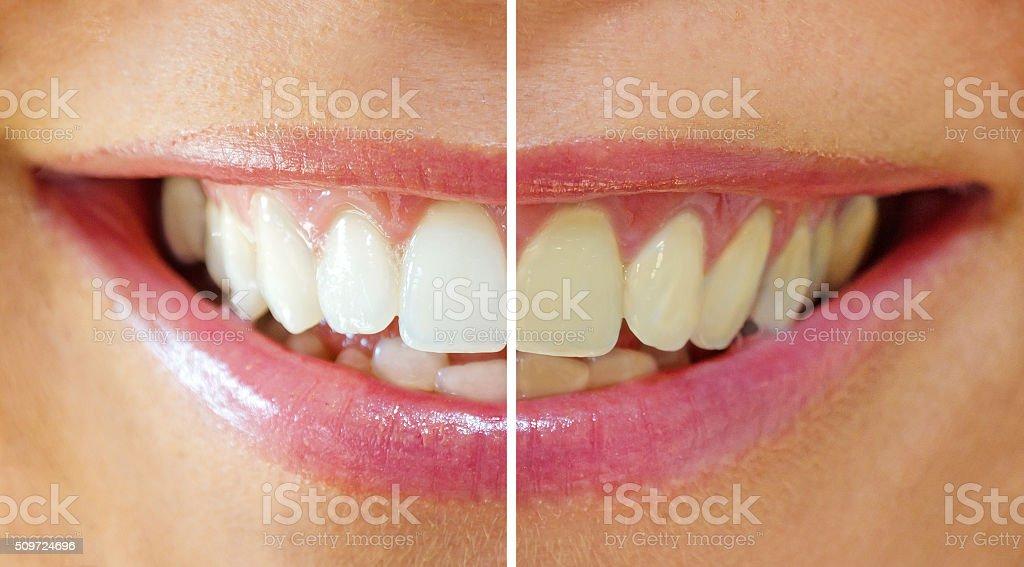 Bleichen der Zähne – Foto