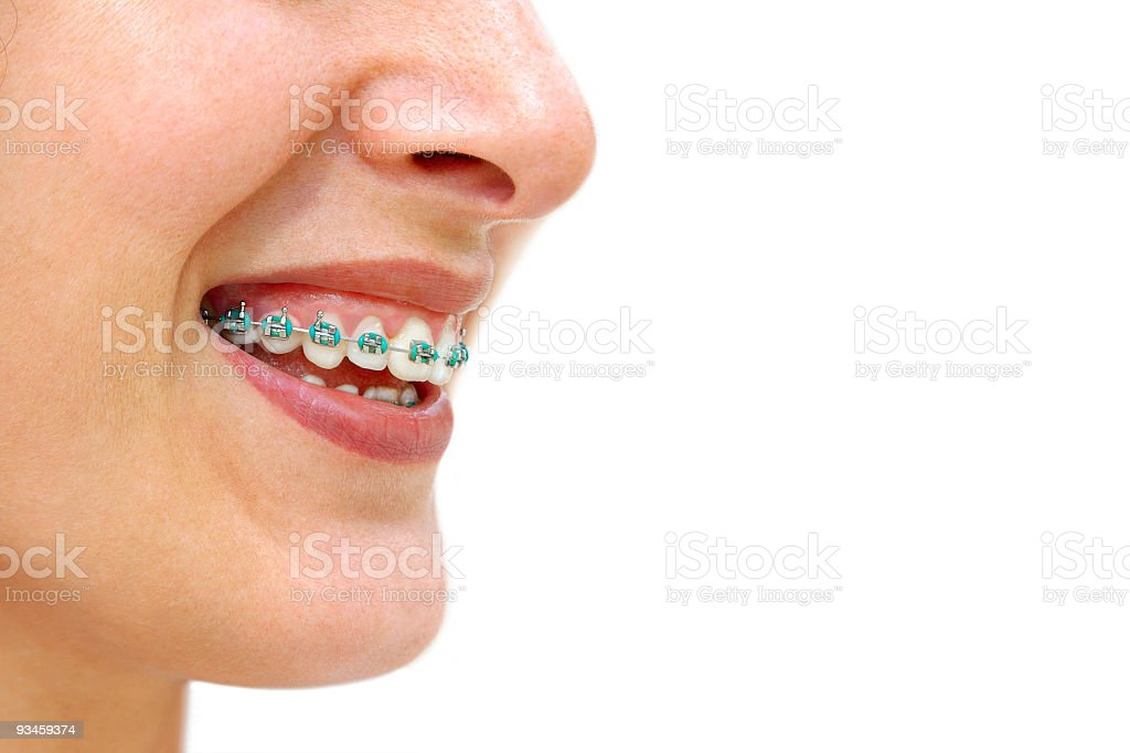 Teeth Braces stock photo