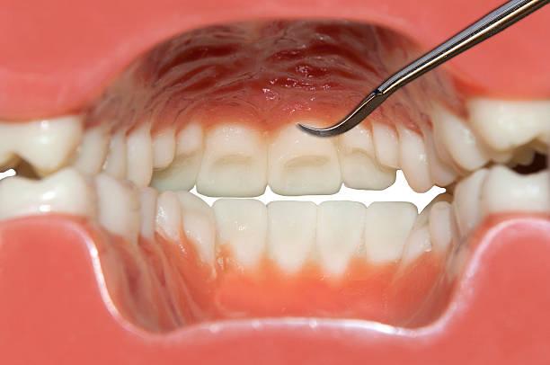 dents de nettoyage, vue intérieure de la bouche humaine - palais buccal photos et images de collection