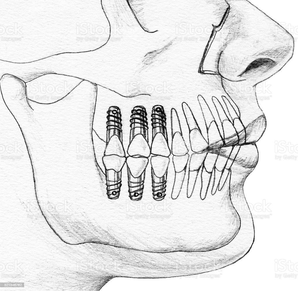 Teeth - Dental Implants In Situ Cutaway View stock photo