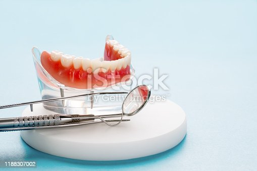 istock Teeth model showing an implant crown bridge model. 1188307002