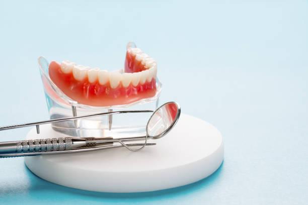 tanden model toont een implantaat crown bridge model. - kunstgebit stockfoto's en -beelden