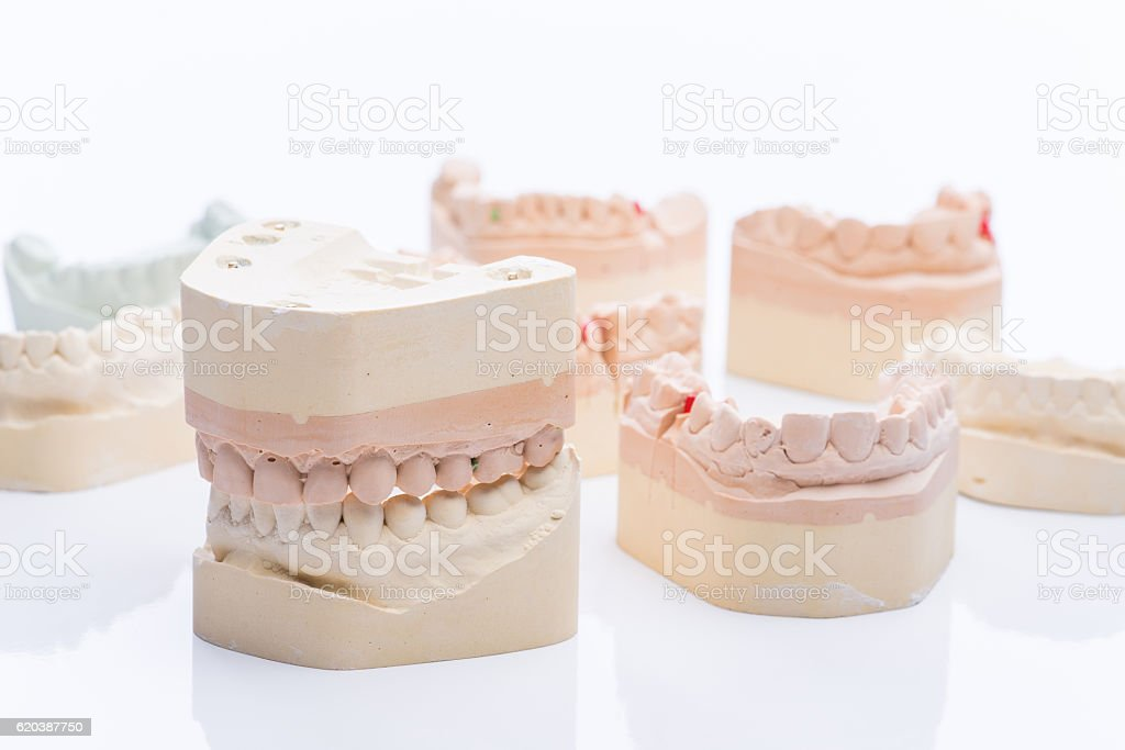 Teeth molds on a bright white table stock photo