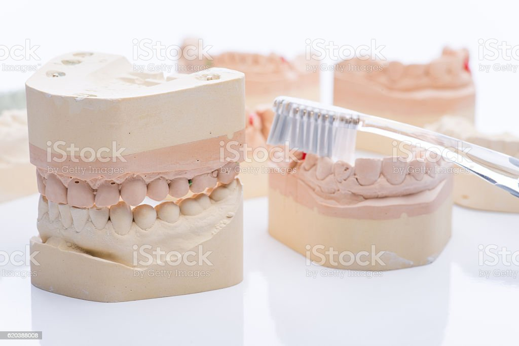 Teeth molds with toothbrush on a bright white table stock photo
